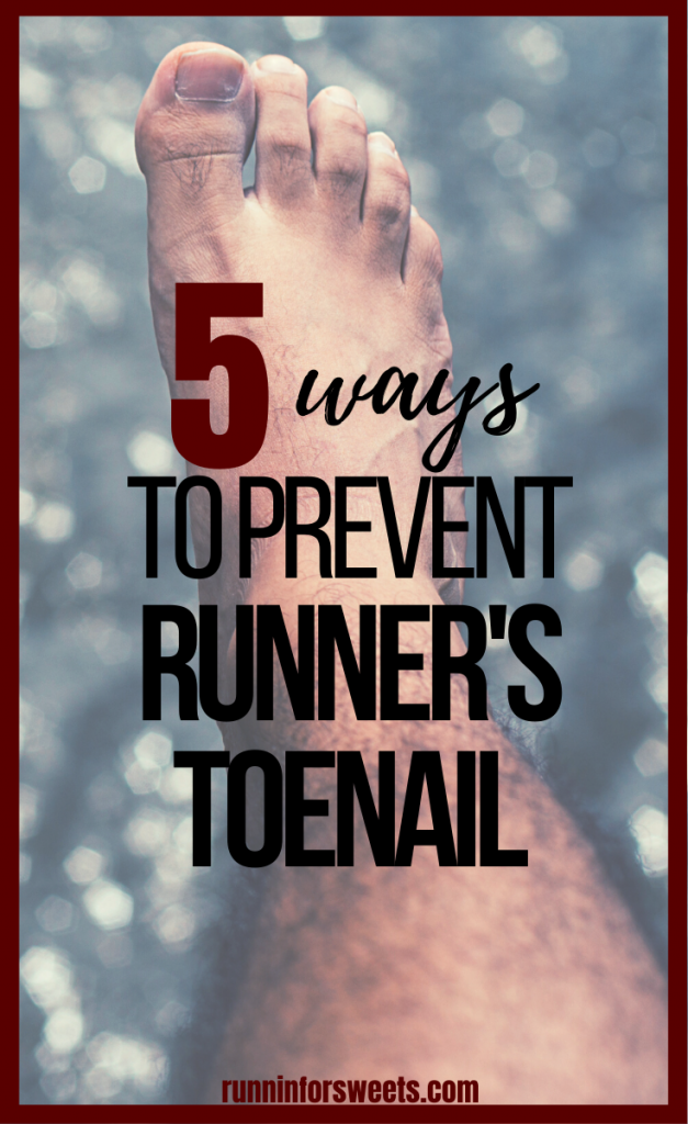 Here is what to do if you have a toenail falling off from running, bruised toenail, or thick runners toenail. These 5 tips will help heal and prevent issues in the future.
